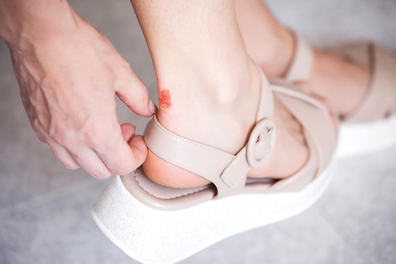 Chân bị đau do đi giày chặt